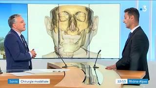Lyon : une chirurgie innovante pour réparer un visage abîmé par un cancer