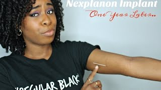Nexplanon Implant | One Year Update !(Nexplanon implant one year update! Here is my experience in the first year! Two years to go! This birth control option was the best choice for me because of the ..., 2016-08-23T22:00:00.000Z)
