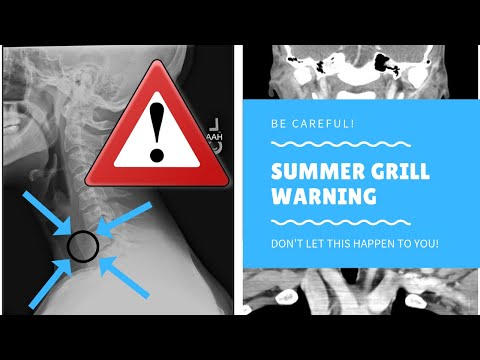 Summer Grill Warning - Don't Let This Happen To Your and Your Family