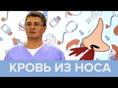 Кровь из носа: причины и правила оказания первой помощи | Доктор Мясников - Доктор 24