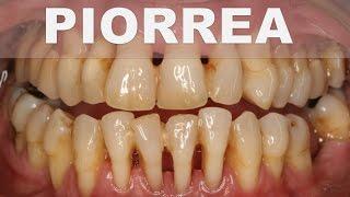 ☞ Remedios caseros para la periodontitis o piorrea – Como tratar la piorrea naturalmente