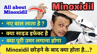 Hair loss solution   Is Minoxidil Effective in Hair Regrowth? side effects and usage of minoxidil