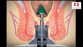 Лечение геморроя - Геморроидэктомия по Лонго: этапы и техника операции удаления внутреннего геморроя