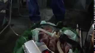 Чрезвычайные будни - Медицина Катастроф.mp4