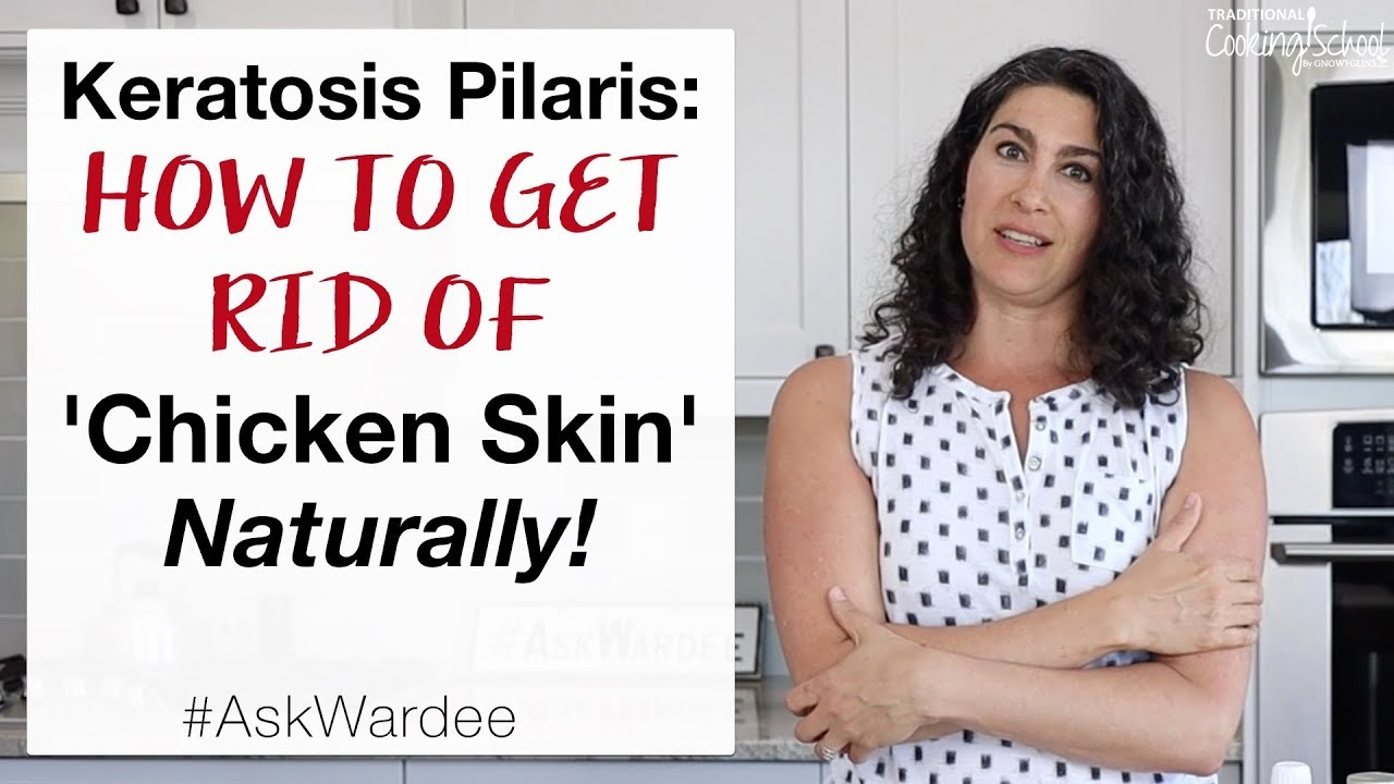 Keratosis Pilaris: 5 Steps To Get Rid Of