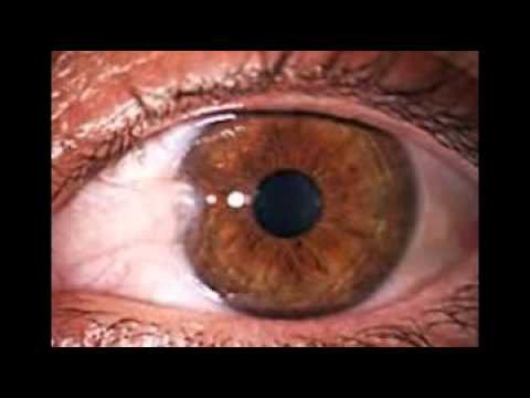 pictures of eye problems youtube
