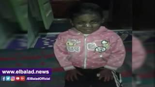 طفلة تحير الأطباء.. طفح جلدي يصيبها بورم ووالدها يستغيث لعلاجها «فيديو»