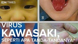 Virus Kawasaki, Seperti Apa Tanda-tandanya?
