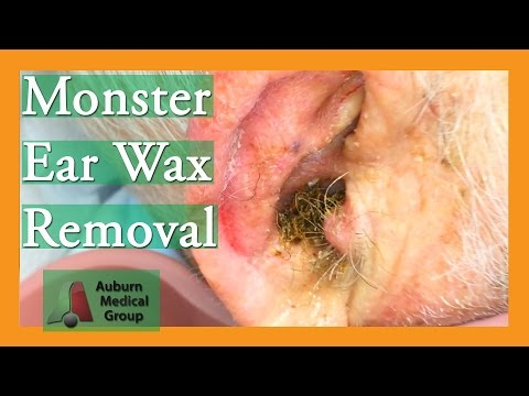 Monster Ear Wax Removal Brings New Life To JOKESTER Patient! | Auburn Medical Group