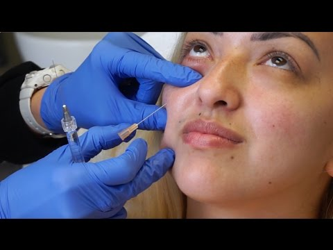 FACIAL FILLER INJECTIONS FOR EYE BAGS | Vlog