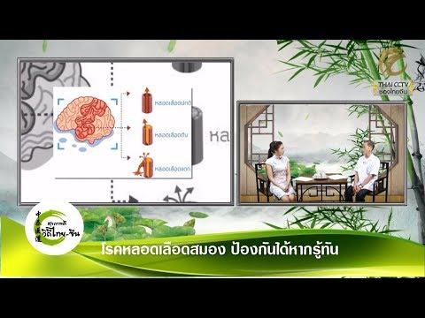 EP.200 - โรคหลอดเลือดสมอง ป้องกันได้หากรู้ทัน โดย อ.ภานุภณ ทองประเสริฐ