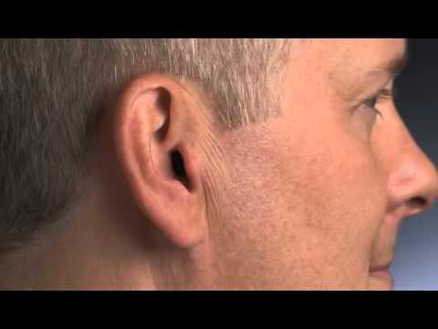 Starkey - SoundLens - Intra-auriculaire - Insérer et retirer l'aide auditive