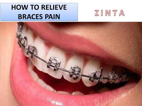 How to relieve braces pain – How To Whiten Teeth With Braces
