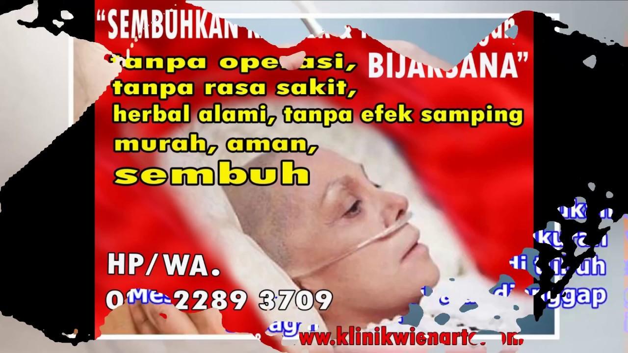 Gejala Awal Penyakit Kanker Kulit Melanoma - YouTube