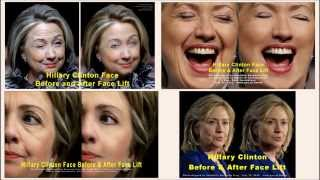 Hillary Clinton Face Before and After Face Lift #448 np