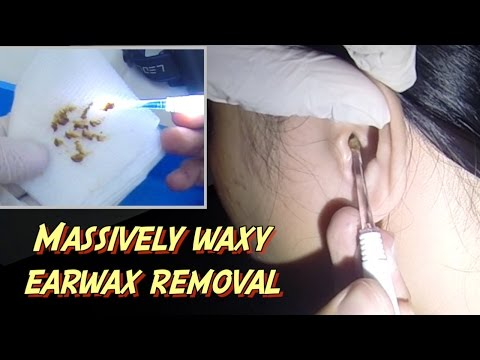 Massively Waxy Earwax Removal