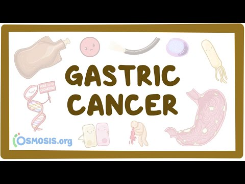 Gastric Cancer - Causes, Symptoms, Diagnosis, Treatment, Pathology