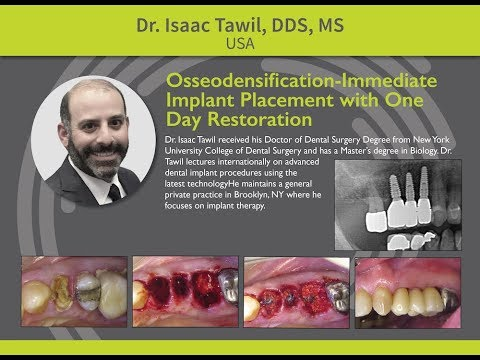 Osseodensification: Immediate Implant Placement with One Day Restoration - Dr. Isaac Tawil