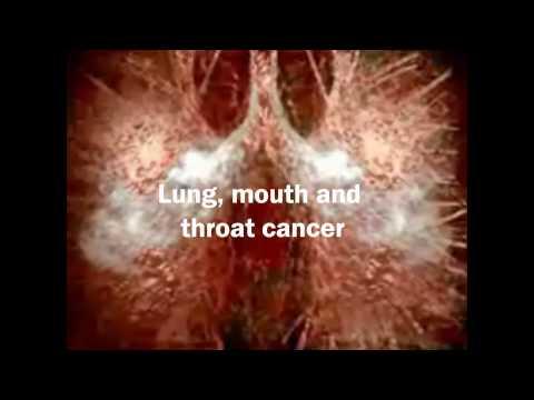 National No Smoking Day Video (10/3/10)