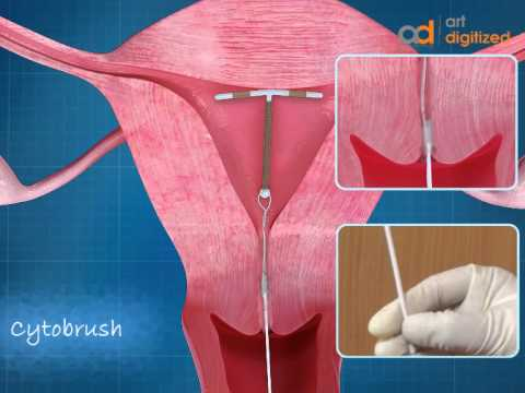 intra-uterine-device-(iud)-copper-t-animation-|-admaa