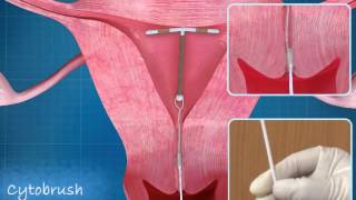 IUD copperT animation
