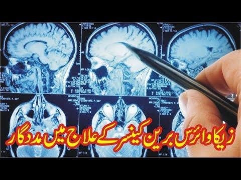 Zika Virus Se Brain Cancer Ka Ilaj