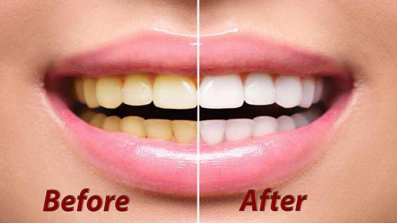 Dental Teeth Whitening Cost Uk Teeth Whitening Kits And Gel
