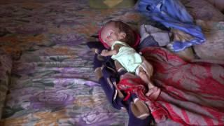 El pequeño Ezequiel padece hidrocefalia y requiere su apoyo
