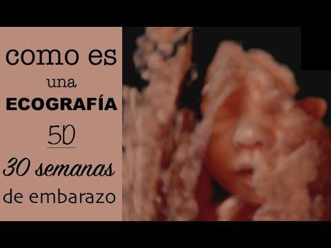 Imagenes de ecografias de 30 semanas de embarazo