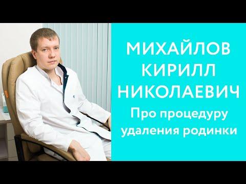 Онколог Михайлов Кирилл Николаевич про процедуру удаления родинки