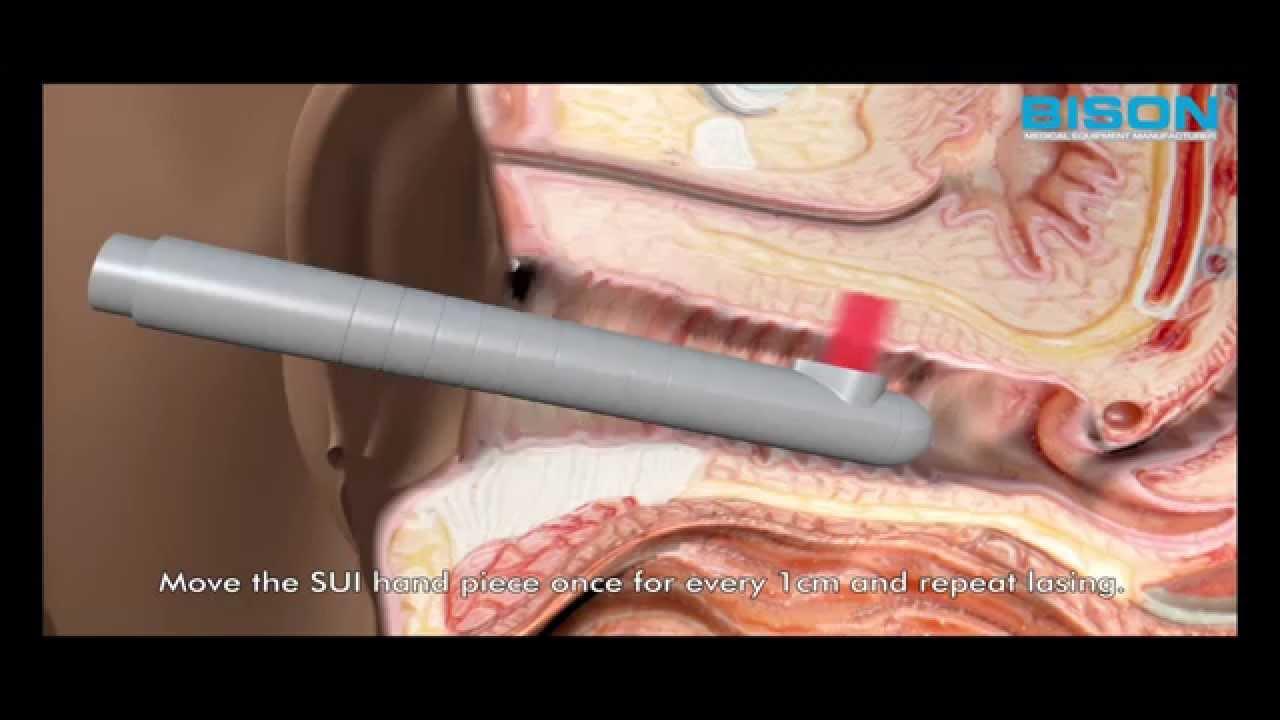 Enterococcci prostatitis Mit írnak elő a férfiak prosztata esetén