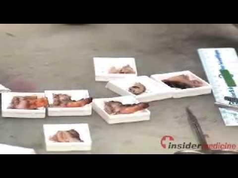 Insidermedicine In 60 - March 4, 2010