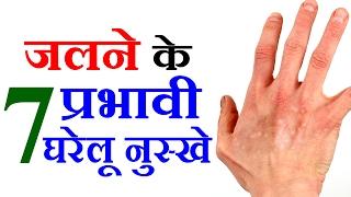 7 Health Tips in Hindi For Burn Treatment - Easy Health Tips In Hindi जलने पर करिए ये घरेलू उपचार
