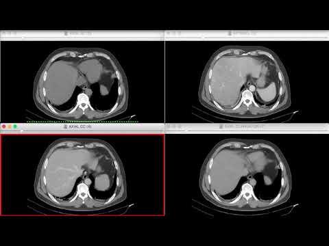 Introducción a los métodos TC y RM en abdomen y pelvis. Repaso ...