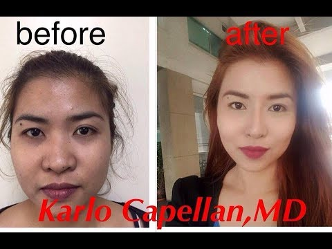 Makati's Finest: Natural Looking Nose Job