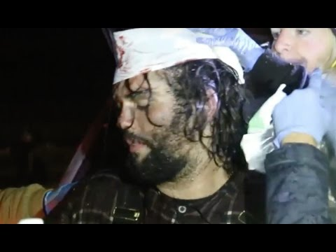 Standing Rock Police Targeting Heads With Rubber Bullets