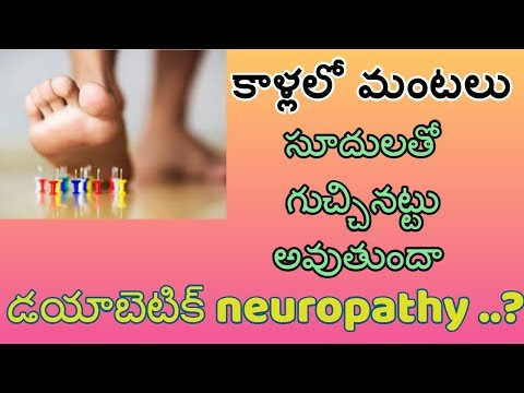 cure-neuropathy-naturally-|-diabetic-neuropathy-treatment-symptoms-|-dr-khadervali-|-state-tv