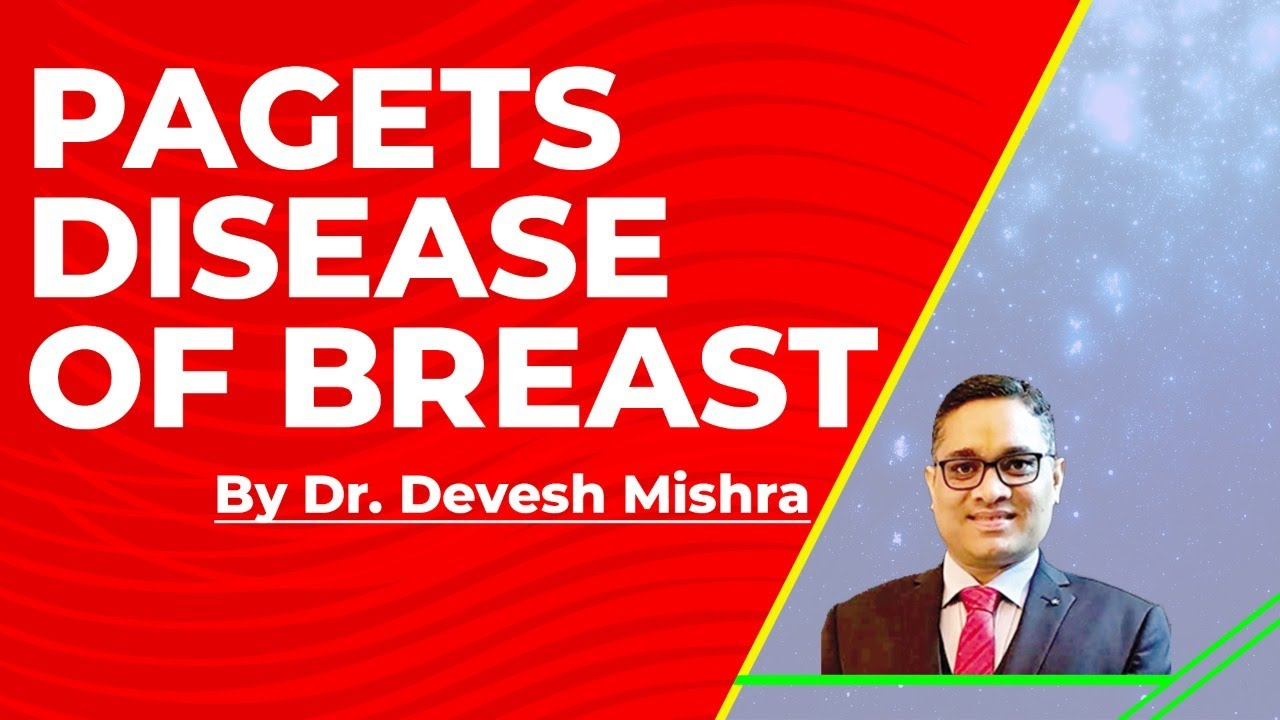 Pagets Disease Of Breast Dr Devesh Mishra - Youtube-8744