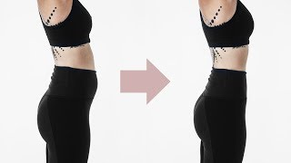 stomach bloating after eating