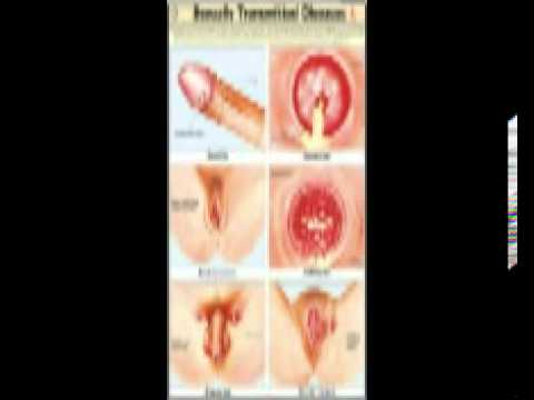 Sexual Transmitted Diseases Pictures