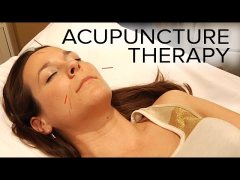 Acupuncture Therapy to Relieve Stress and Sinus Issues | ASMR Triggers