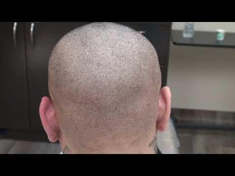 dr.-diep-reviews-scar-fue-scars-hair-transplant-restoration-surgery-minimal-scar-bald-hair-loss