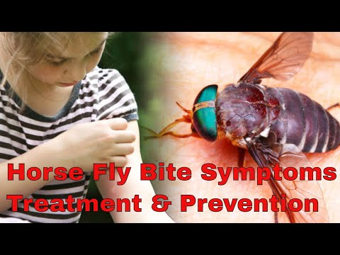 Horsefly Bites Symptoms & Treatment   Horse Fly Bite Cure & Prevention Advice