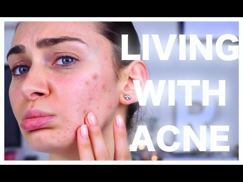 How Adult Acne Ruined  My Life  +  How I Manage it at Age 24  | Ruby Golani