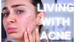 hqdefault - Sudden Onset Adult Acne