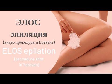 ЭЛОС эпиляция (удаление волос), Ереван / ELOS Epilation (hair Removal), Yerevan - Liana Pro