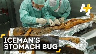 Scientists with Italy's Institute for Mummies and the Iceman looked...