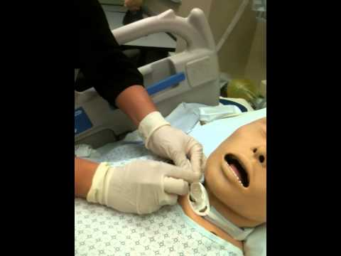 changing the tracheostomy Cleaning and changing of a tracheostomy tube inner the entire tracheostomy tube should be changed regularly according to policy no tracheostomy tube change.