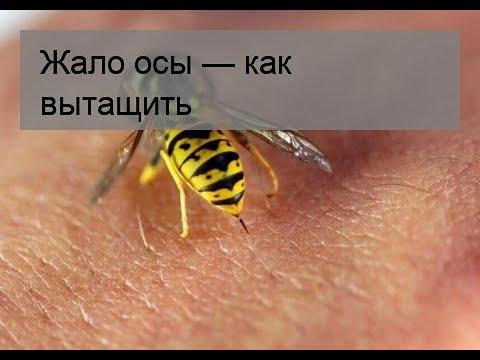 Жало осы — как вытащить