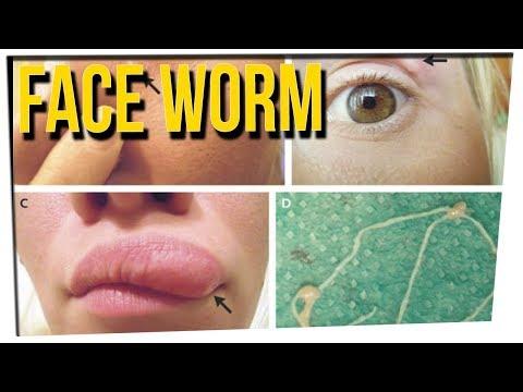 WS - Woman Finds Worm In Her Face ft. DavidSoComedy & Noah Fleder